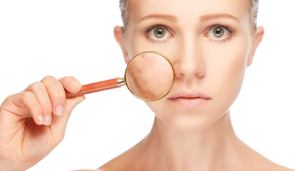 Reflux Of Brandend Maagzuur Verhelpen 9 Effectieve Tips